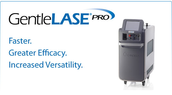Gentlelase Laser Hair Removal Systems